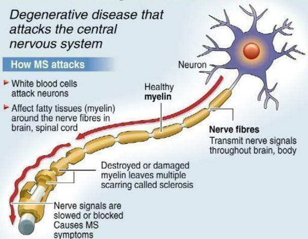 What is MS | Aaron Attacks MS Multiple Sclerosis
